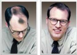 پرفروش ترین پودر پرپشت کننده مو