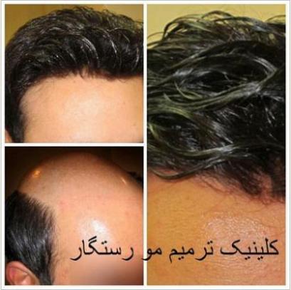 مرکز تخصصی ترمیم مو در اصفهان